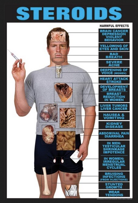 Efek Samping Penggunaan Steroid