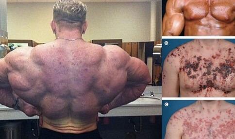 Kerusakan Kulit Akibat Steroid