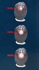 Pemakaian Kirkland Minoxidil